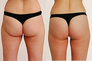 Image result for cellulite butt
