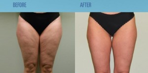get rid of cellulite on legs