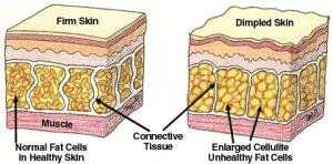 celllulite-causes