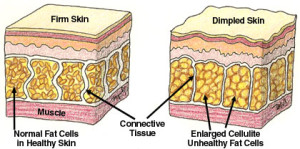 Cellulite Formation in Skin
