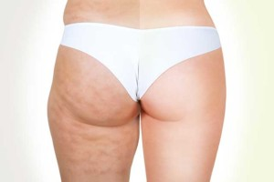 How to lose cellulite