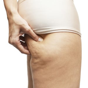 Learning How to Get Rid of Cellulite on Buttocks
