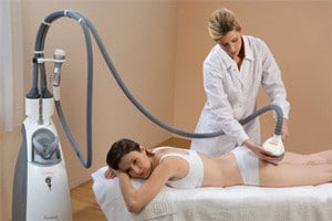 Cellulite Laser Treatment