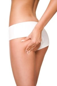 What Causes Cellulite on Back of Thighs